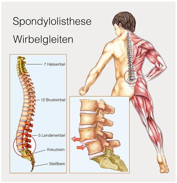 Rückenschmerzen wegen einem Wirbelgleiten in der LWS