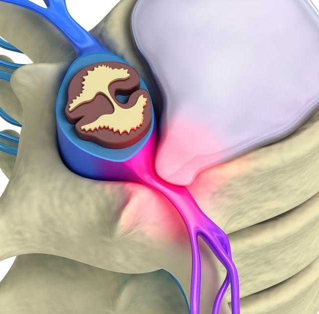 Wenn der Fasserring geschwächt ist oder bricht drückt die sich in der Bandscheibe befindliche gallertartige Flüssigkeit auf einen Spinalnerv, der dann starke einschießende Schmerzen auslöst.