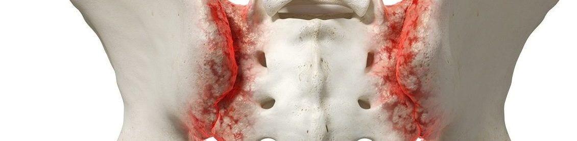 ISG-Syndrom kann ein blockiertes, aber auch arthritisches Iliosakralgelenk sein was zu Rückenschmerzen führt.