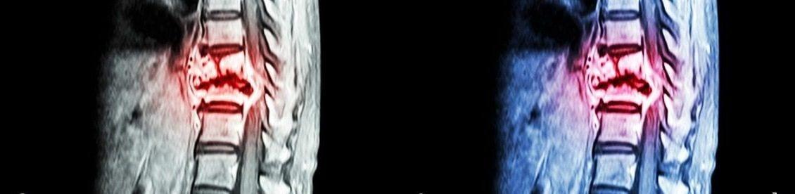 Metastasen, die aus einem Prostatakarzinom, einem Bronchialkarzinom (Lungenkrebs), Brustkrebs oder einem Nierenzellenkarzinom (Nierenkrebs) entstehen sind die häufigsten Ursachen für einen Knochentumor im Bereich der Wirbelsäule.
