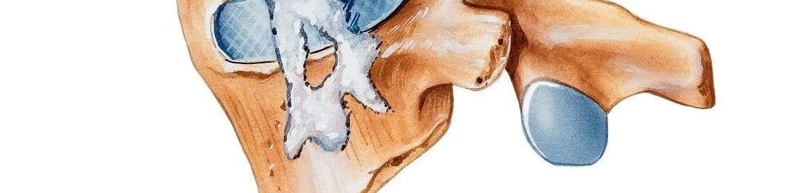 Morbus Bechterew (Spondylitis ankylosans) verursacht eine degenerative Veränderung der Wirbelsäule, die mitunter einzelne Wirbelkörper miteinander verknöchert.