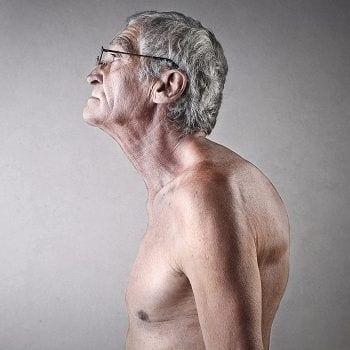 Morbus Paget führt zu einer Verdickung der Knochenstrukturen und dadurch zu einer Verformung. Im Rückenbereich kann das Ergebnis eine Hyperkyphose sein.