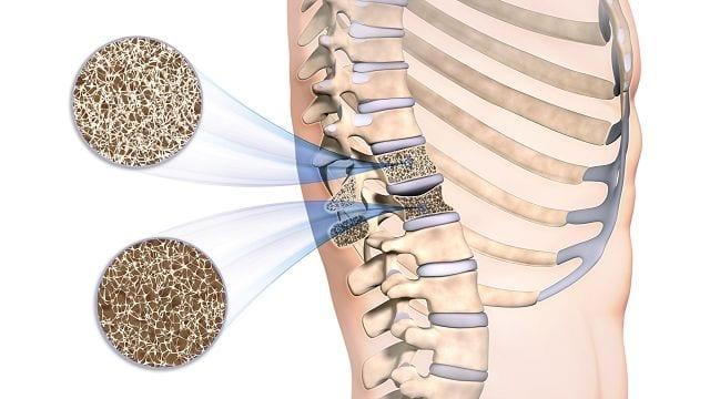 Osteoporose ist eine meist altersbedingte Erkrankung die die Knochendichte verringert und den Knochen instabiler macht. Dadurch kann er bereits bei alltäglichen Belastungen brechen.