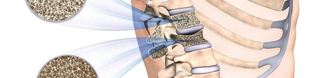 Durch Osteoporose vermindert sich die Dichte der Wirbelkörper, was bereits bei alltäglichen Belastungen zu sogenannten Sinterbrüchen führen kann.