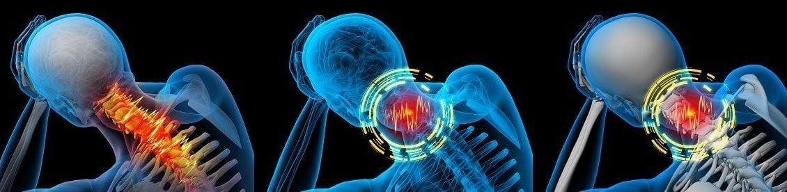 Die psychosomatischen Einflüsse auf Rückenschmerzen sind meist unterschätzt und werden selten damit in Verbindung gebracht. Besonders die Faktoren Stress oder Depressionen können langfristig gesehen zu chronischen Rückenleiden führen.