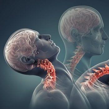 Zerrungen der Muskulatur, Sehen und Bänder sind maßgebliche Ursachen für ein Schleudertrauma