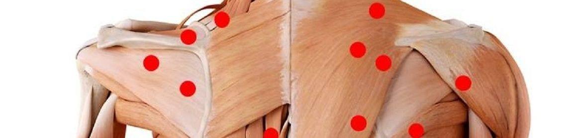 Triggerpunkte entstehen durch dauerhafte Muskelverspannungen und bilden kleine Knötchen aus ähnlich wie krampfenden Muskulatur.