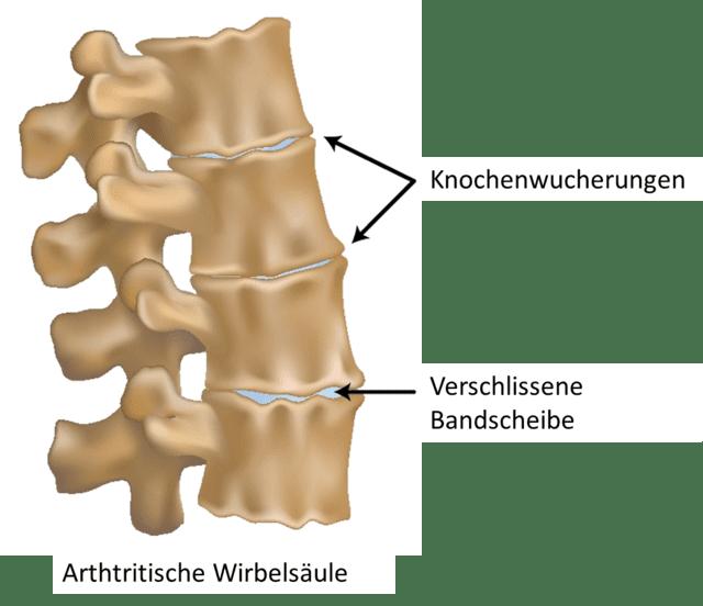 Eine Arthtritis bezeichnet entzündete, schmerzende Gelenke. Im Falle der Wirbelsäule sind die Ober- und Unterseiten der Wirbelkörper und die Facettengelenke betroffen.