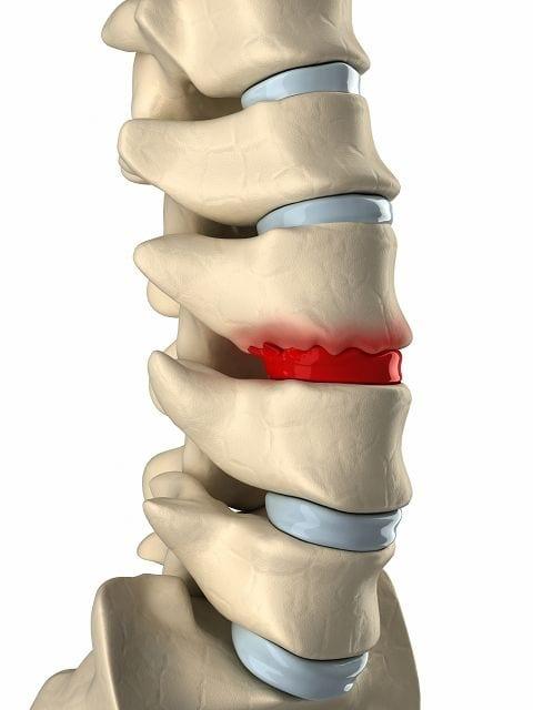 Durch degenerierende Erkankungen wie Morbus Bechterew oder überlastete Bandscheiben bilden sich Knochenwucherungen sogenannte Osteophyten. Damit versucht der Körper den Verschleiß zu kompensieren.