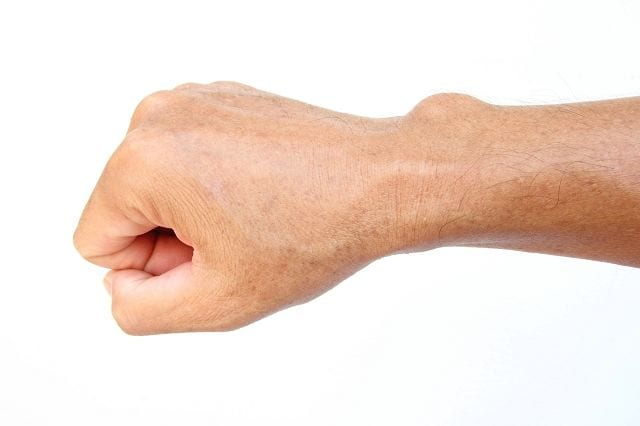 Eine Bindegewebswucherung, medizinisch Ganglion genannt. Solche Wucherungen entstehen am häufigsten an Handgelenken und wird dort als Überbein bezeichnet.