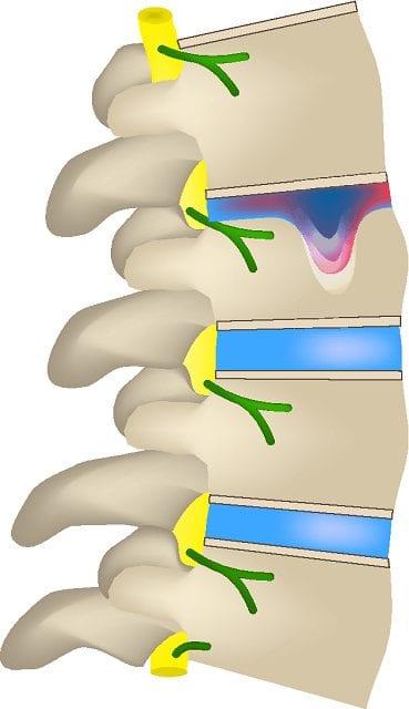 """Der ausgeübte Druck auf die Wirbelsäule durch Fehlhaltung während der Wachstumsphase entstehen sogenannte Schmorl-Körperknötchen. und führen zu einer Keilförmigen Ausbildung der Wirbelkörper. Dies bringt die Wirbelsäule in eine Fehlstatik. Das Ergebnis ist ein """"Buckel"""" (Hyperkyphose)"""