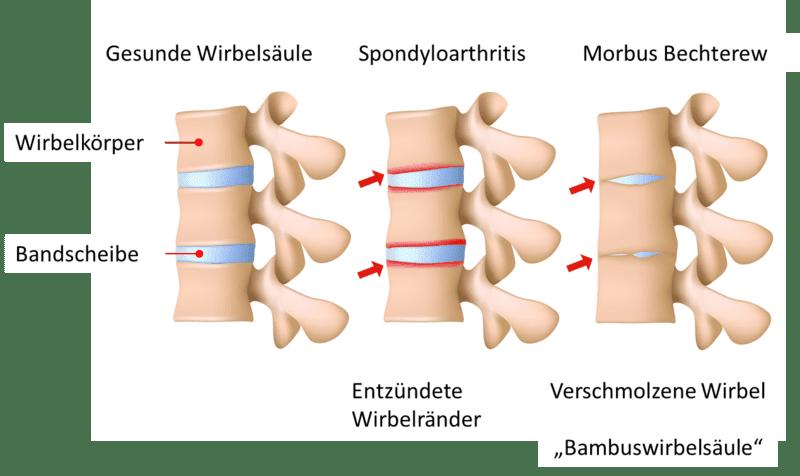 Morbus Bechterew oder auch Spondylitis ankylosans genannt, gehört in das Krankheitsbild der Spondyloarthritis. Sie ist eine entzündliche, degenerative Erkrankung mit Schmerzen und bei einem schweren Verlauf mit Versteifungen der Gelenke.