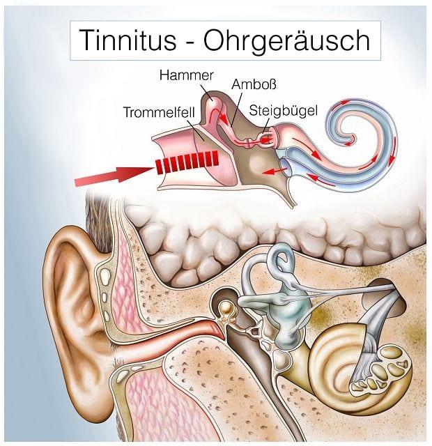 Tinnitus sind Ohrgeräusche, die ohne Geräuschquelle durch die Betroffenen wahrgenommen werden. Es kann ein Pfeifen, Rauschen oder Summen sein welches ständig oder nur zeitweise auftritt und auf beiden Ohren oder nur einem entsteht.