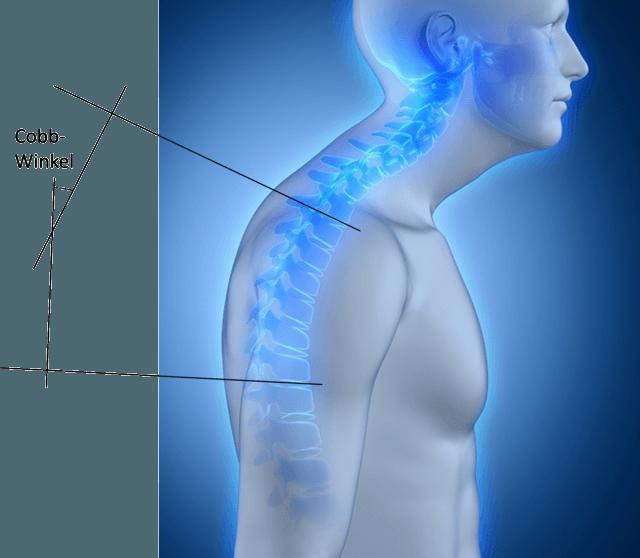 Abhängig vom Cobb-Winkel und des Schmerzzustandes des Patienten wird entschieden wie die Behandlung aussehen soll. Normalerweise ist eine konservative Behandlung wie Physiotherapie oder Korsett ausreichend. In schweren Fällen ist eine Operation erforderlich.