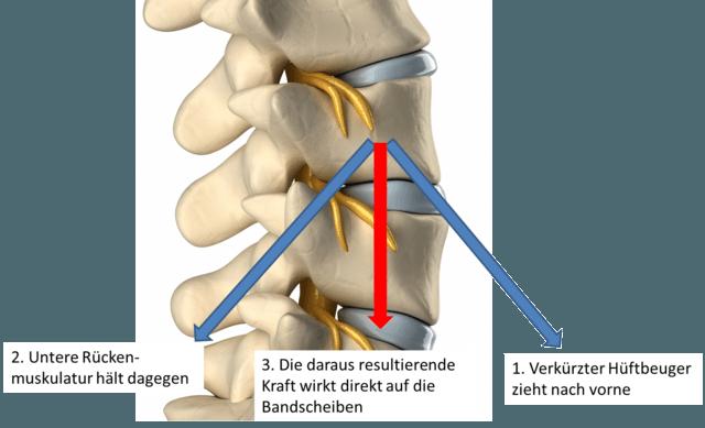 Die Kombination aus einem verkürzten Hüftbeuger und einer dagegenhaltenden Rückenmuskulatur führt zu einer verstärkt wirkenden Kraft auf die Bandscheiben. Dies begünstigt einen schnelleren Verschleiß bzw. einem Bandscheibenvorfall.