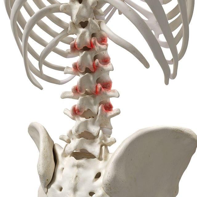 osteochondrose ernährung