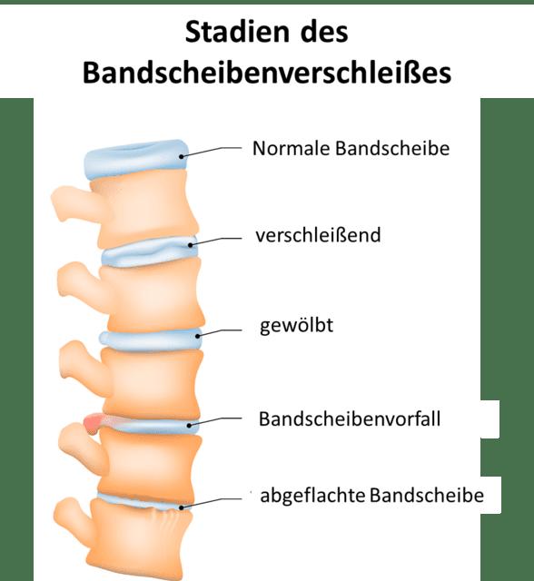 Osteochondrose - Bandscheibenverschleiß und Verknöcherung der Wirbelgelenke