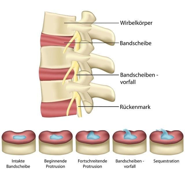 Örtlich tritt ein Bandscheibenvorfall zu 90% in der Lendenwirbelsäule auf, darüber hinaus kommt er auch im Bereich der Halswirbel vor. Dabei unterscheidet man drei Fälle: Protrusion: Vorwölbung des Faserrings Prolaps: Bruch des Faserrings und Austritt von Bandscheibenflüssigkeit Sequester: Bruch des Faserrings und Teile der Bandscheibenflüssigkeit verlieren die Verbindung zur ursprünglichen Bandscheibe