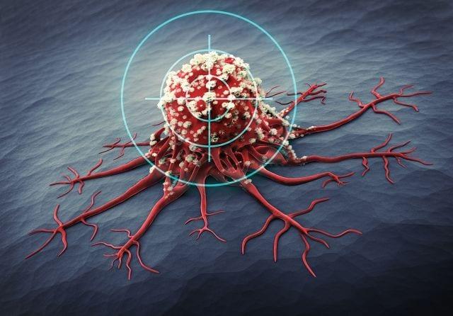 In den letzten Jahren wurde viel Forschung in die Unterbindung der Blutversorgung von Tumoren investiert.