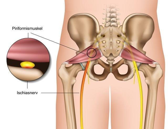 Der Piriformismuskel verläuft entlang des Gesäßes und bedeckt den Ischiasnerv. In Folge von sportlicher Betätigung oder einem Sturz, bei dem es zu Vernarbungen kommen kann führt dies zu Druck auf den Ischias.