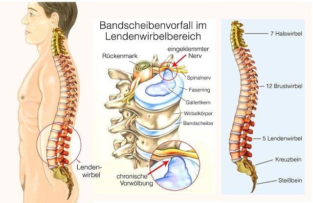 Ein Bandscheibenvorfall im Lendenwirbelbereich findet zu 98% an den Bandscheiben zwischen Kreuzbein, dem 5. Lendenwirbel sowie dem 4. Lendenwirbel statt. Der Gallertkern wölbt sich vor oder tritt aus durch den Faserring aus. Somit übt er meist Druck auf anliegende Nervenstrukturen aus und führt zu Schmerzen als auch zu neurologischen Ausfallerscheinungen.