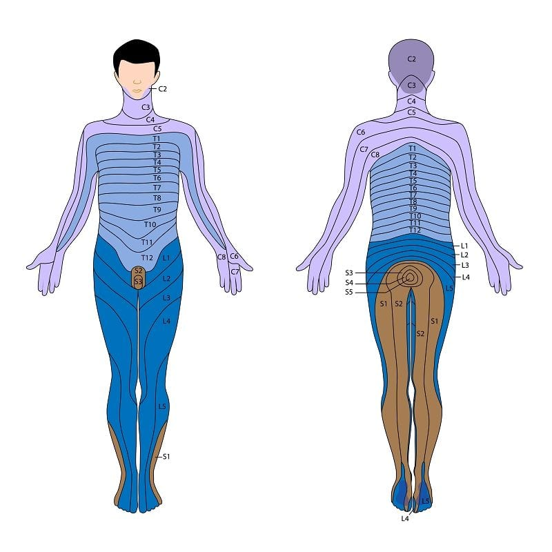 Treten Sensibilitätsstörungen an den gezeichneten Hautarealen auf, kann von einem Wurzelsyndrom bzgl. der Spinalnerven ausgegangen werden.