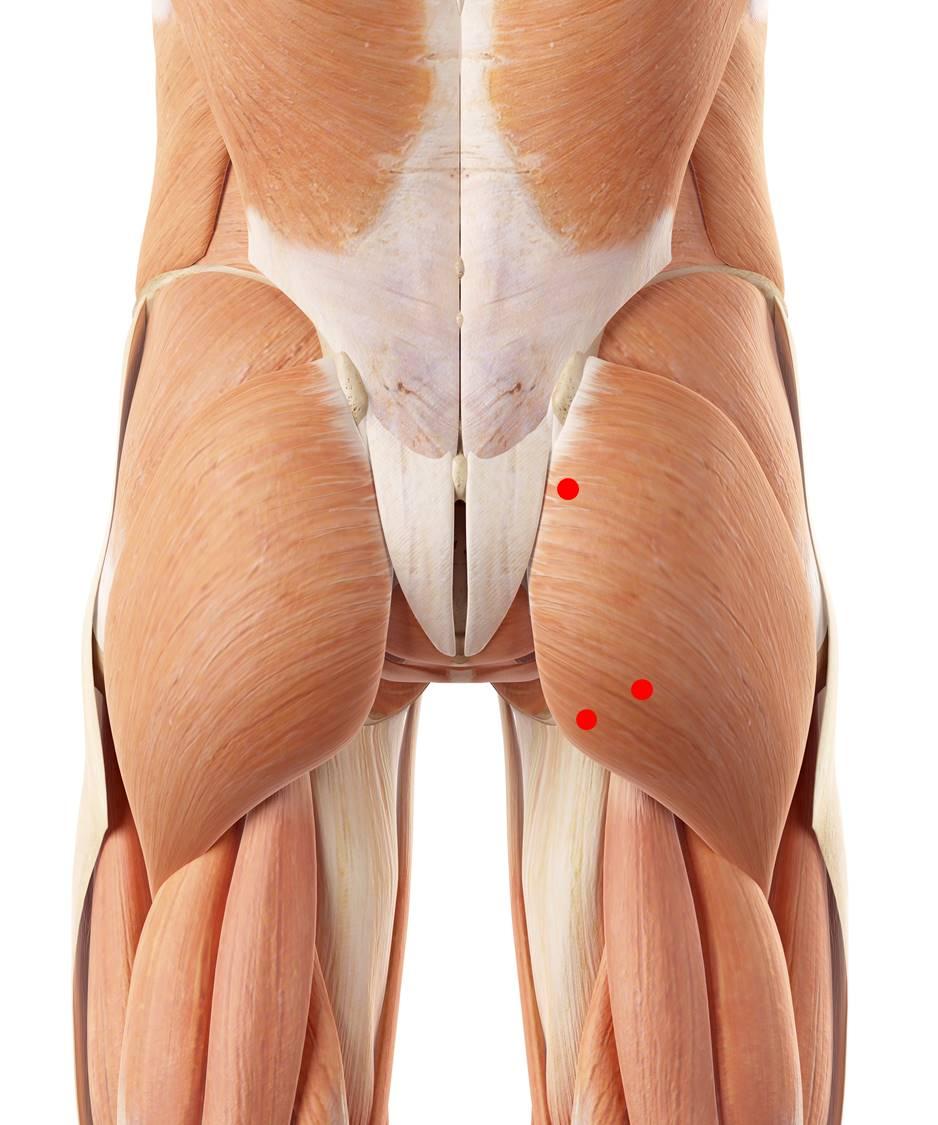 Triggerpunkte im großen Gesäßmuskel verursachen tiefe Kreuzschmerzen und Beschwerden beim Sitzen.