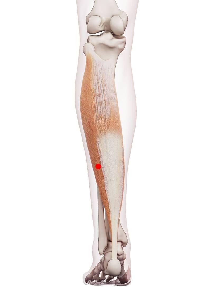 Dieser Triggerpunkt kann Schmerzen im Bereich des Iliosakralgelenks verursachen