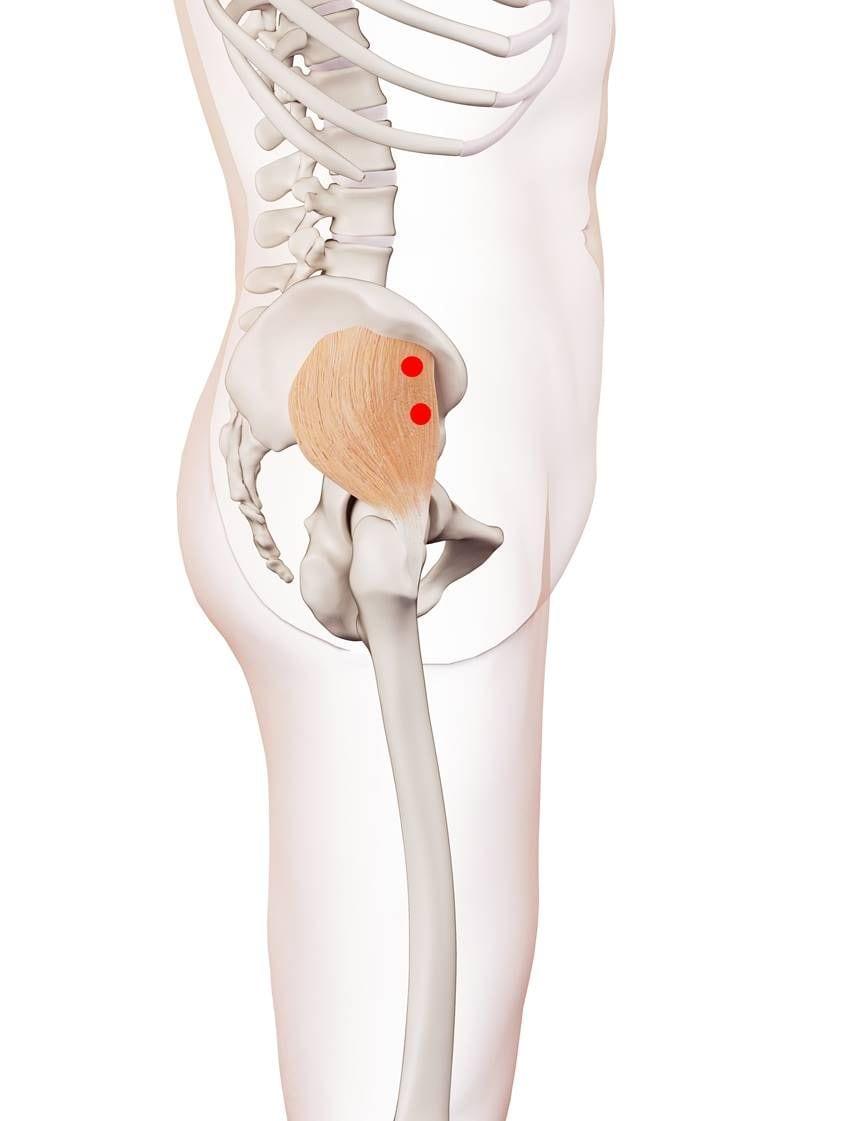 Triggerpunkte im kleinen Gesäßmuskel verursachen Kreuz-, Hüftschmerzen und Beschwerden beim Sitzen und Aufstehen.