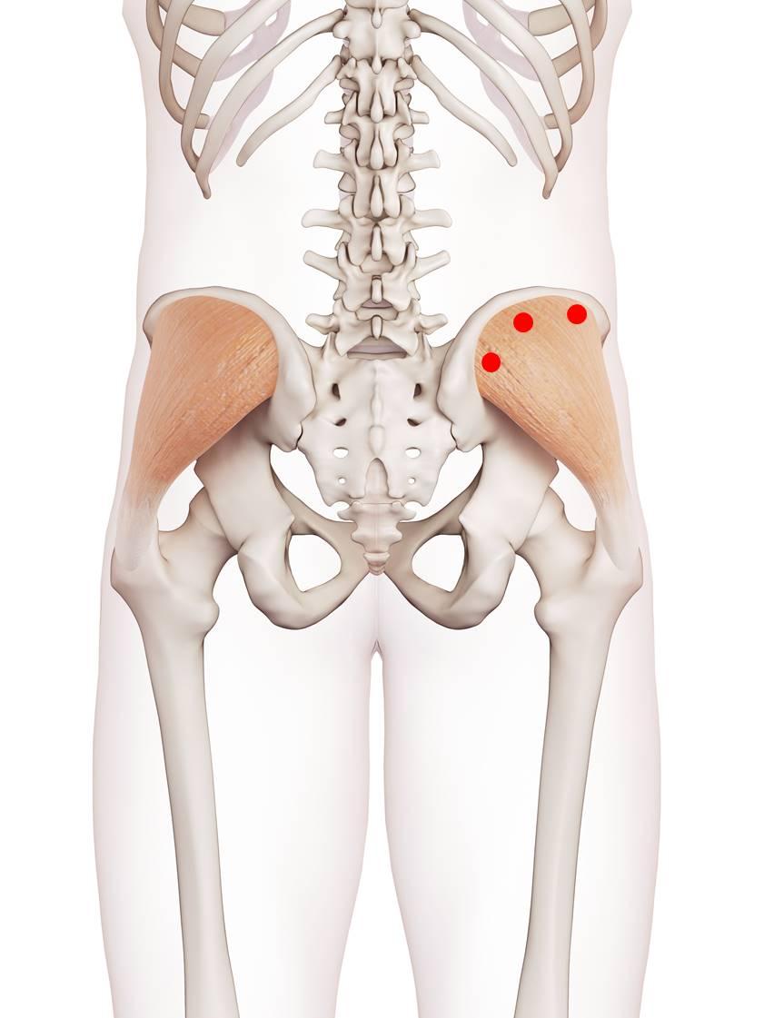 Triggerpunkte im mittleren Gesäßmuskel verursachen Kreuz-, Hüftschmerzen und Beschwerden beim Sitzen und Aufstehen.