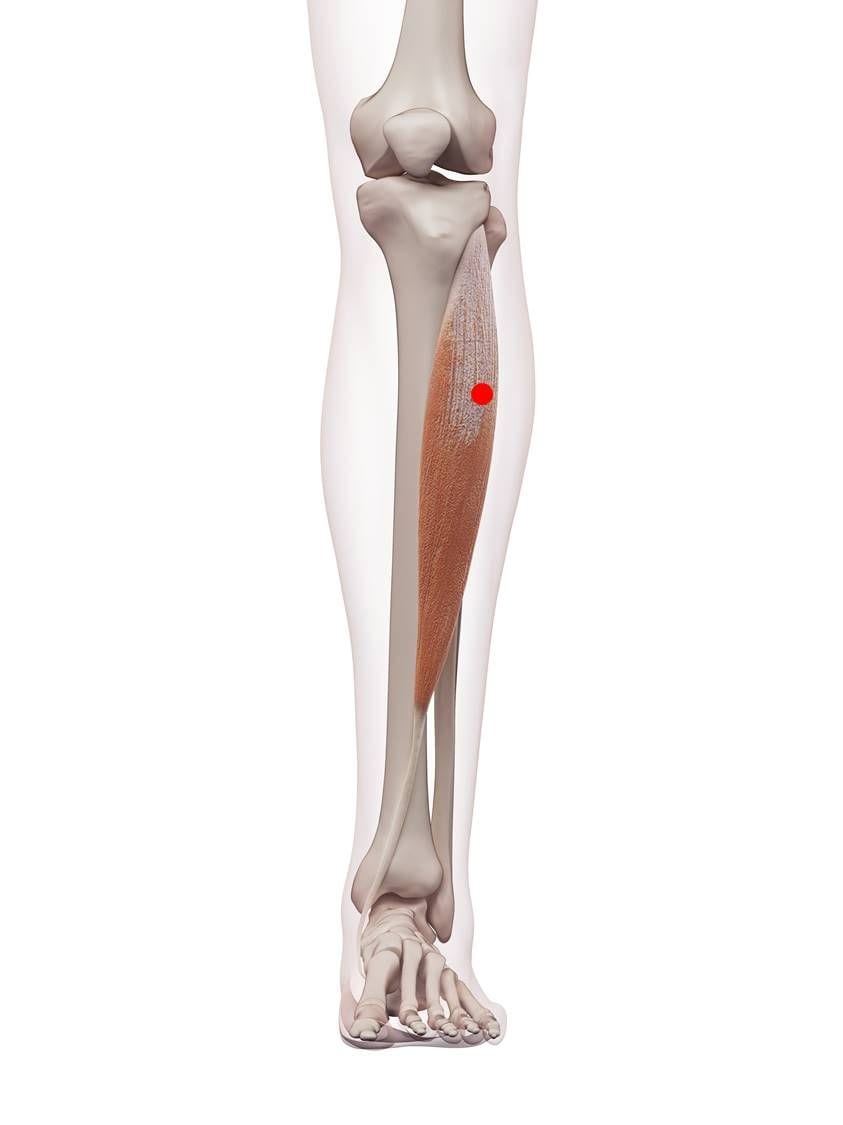 Ein Triggerpunkt im vorderen Schienbeinmuskel kann durch einen Bandscheibenvorfall im vierten oder fünften Lendenwirbel entstehen.
