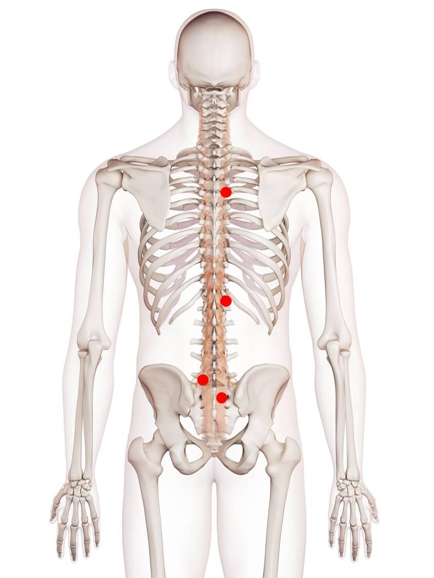 Triggerpunkte in der Tiefenmuskulatur verursachen Rückenschmerzen und Bewegungseinschränkungen der Wirbelsäule. Ebenfalls kann es Nervenkompressionen kommen. Infolge dessen treten Empfindungsstörungen der Rückenhaut auf.