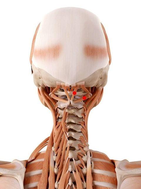 Triggerpunkte: Übersicht, Symptome und Ursachen   backlaxx®