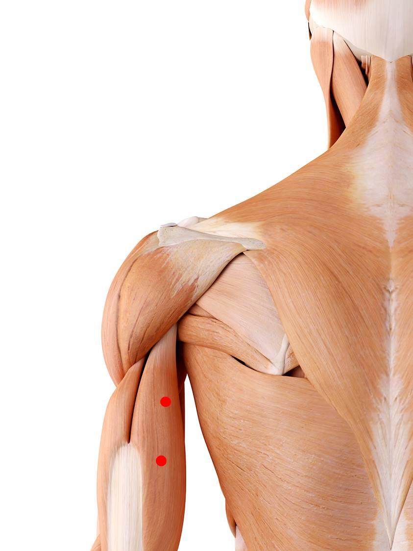Triggerpunkte im Trizeps führen zu Schmerzen auf der Armrückseite und im Ellbogen. Darüber hinaus verläuft dort ein Nerv, der gedrückt werden könnte. Dies führt zu Empfindungsstörungen auf der Rückseite des Unterarms und der Hand.
