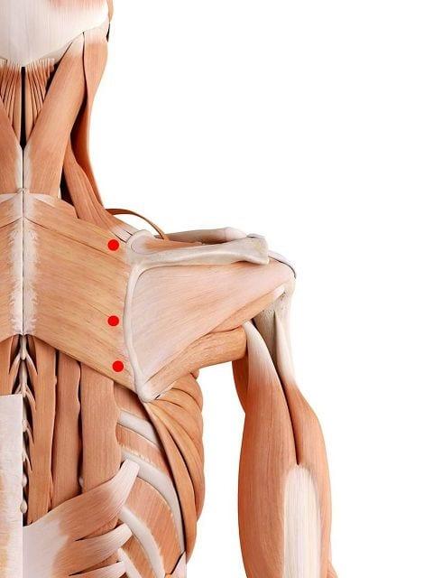 Triggerpunkte im großen und kleinen Rautenmuskel oberflächlichen Bewegungs- und Ruheschmerz sowie Bewegungseinschränkungen des Armes.