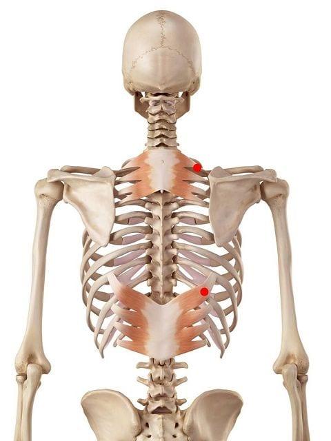 Triggerpunkte in den hinteren Sägemuskeln bereiten neben Rückenschmerzen auch Übertragungsschmerzen auf der Rückseite des Armes bis in den kleinen Finger.