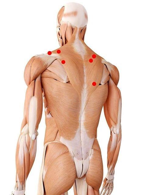Triggerpunkte im mittleren und unteren Trapezmuskel können Übertragungsschmerzen im Nacken und den Schultern auslösen.