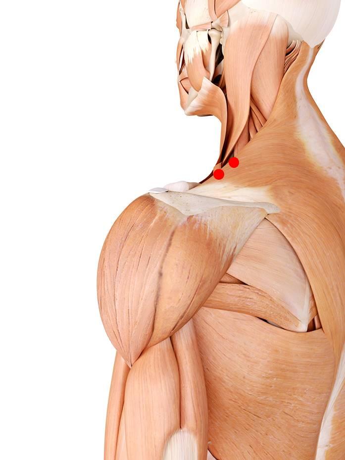 Der obere Trapezmuskel ist Teil des Trapezmuskels und ist zuständig für die Kopfdrehung sowie das heben der Schultern. Triggerpunkten vorhandene Triggerpunkte können Nacken- und Spannungskopfschmerzen auslösen.