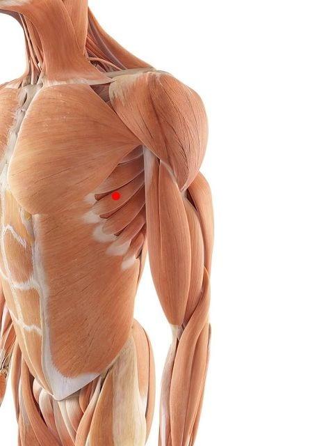 Triggerpunkte im vorderen Sägemuskel verursacht Schmerzen im Schulterblatt, Kurzatmigkeit, Empfindungstörungen im Arm und Bewegngseinschränkungen der Schulter.