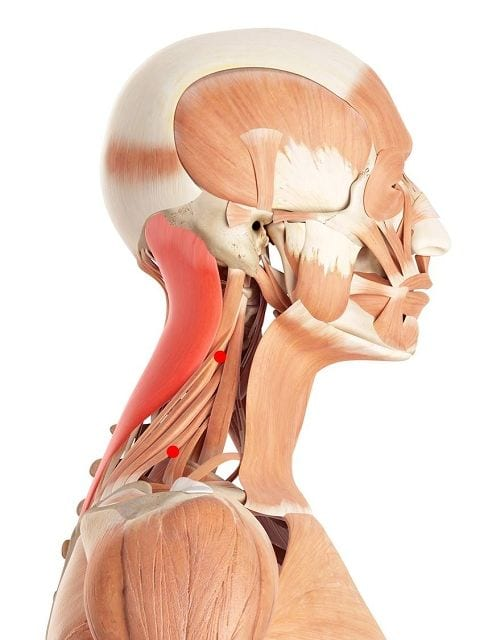 Triggerpunkte im Riemenmuskel lösen Kopf- und Nackenschmerzen sowie Bewegungsschmerz aus.