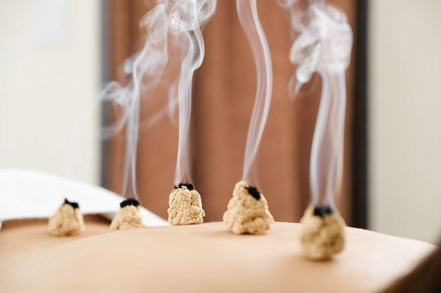 Die Moxibustion ist in China eine mit der Akupunktur gleichrangige Therapie. Dabei verglimmen kleine Mengen an Beifuß (Moxa) auf bestimmten Therapiepunkten entlang der Meridiane.