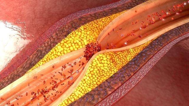 Cholesterin ist ein lebenswichtiges Lipid (Fett) welches der Körper selbst herstellen kann. Der Körper kann dadurch Cholesterinwert selbst regeln. Bei Störungen des Stoffwechsels kann es allerdings zu einer dauerhaften Überversorgung (Hypercholesterinämie) kommen.