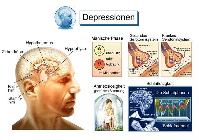Depressionen haben psychische und physische Hintergründe, die auf dieser Inforgrafik dargestellt werden.