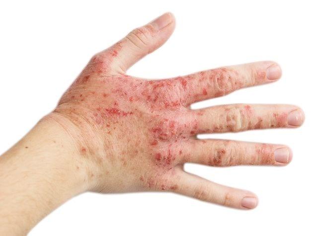 Der häufigste Grund für Ekzeme im Handbereich ist das in Berührung kommen mit toxischen Substanzen.