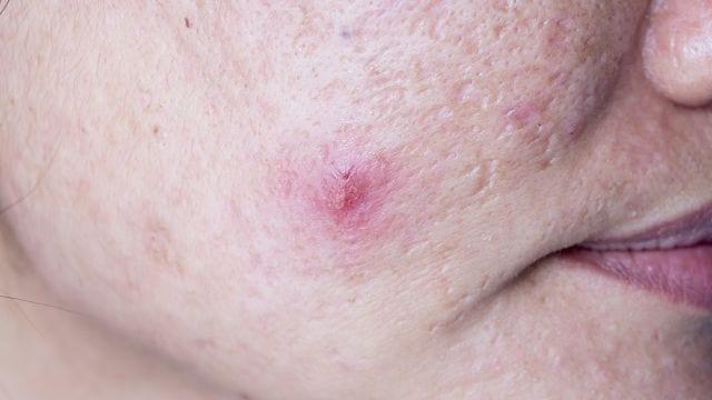 Durch das Eindringen von Bakterien durch Insektenstichen oder verunreinigten Nadeln können sich Furunkel bilden.