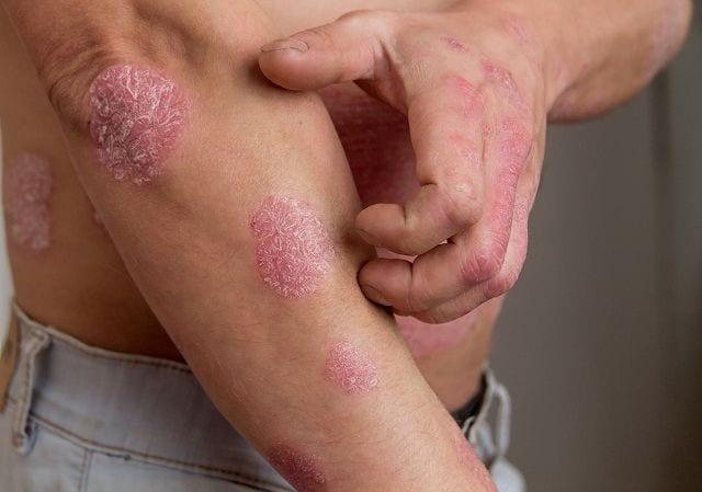 Psorasis betrifft nicht nur die Haut sondern kann Gelenke und Organe betreffen.