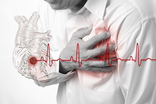 Ein Herzinfarkt kann neben den bekannten Symptomen wie Schweißausbrüche, ziehen in der Brust, Übelkeit und ein Engegefühl von starken Rückenschmerzen begleitet werden.