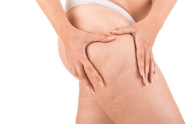 Die Faszienrollmassage kann helfen Cellulite zu reduzieren.